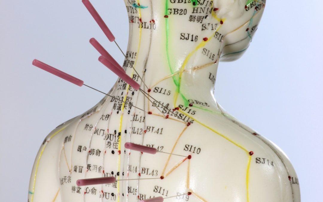 Kopfschmerzen: Akupunktur und Moxibustion für sechs verschiedene Kopfschmerztypen